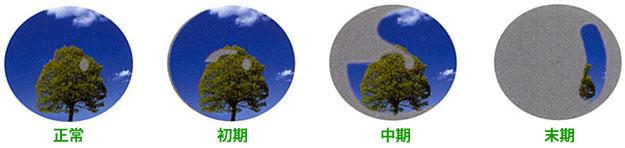 視野が欠けていくイメージ(右目)